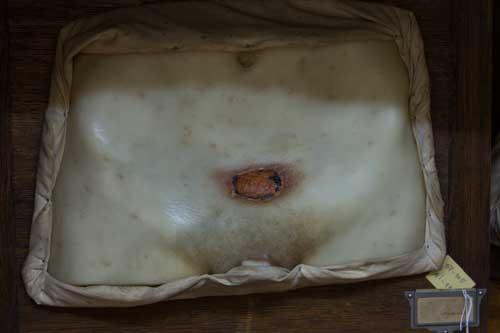 Moldes em Cera - Hospital dos Capuchos
